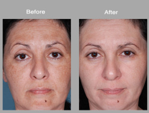 obagi-nuderm-before-after-1-large